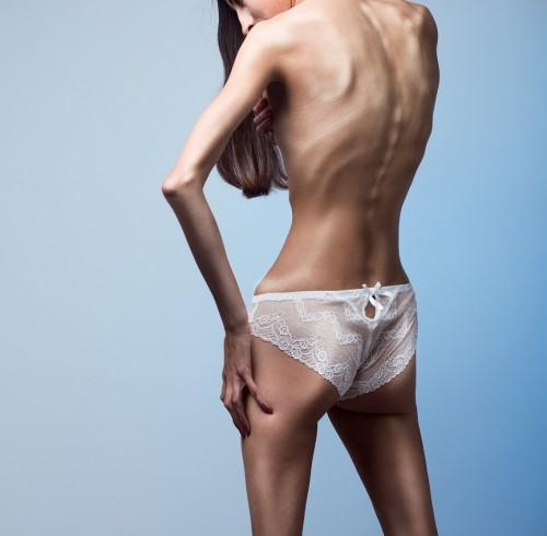 el caso de anorexia de Beth Hall
