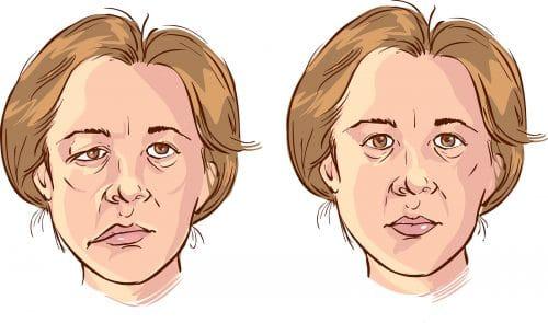 Todo lo que debes de saber de los síntomas parálisis de Bell